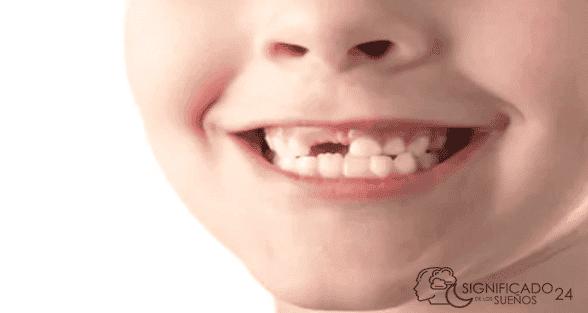 sonar con dientes caídos